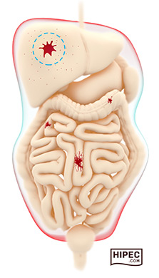 Peritoneal Cancer Illustration